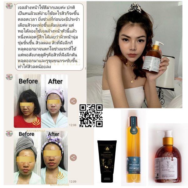 Anti-acne Cleansing Gel